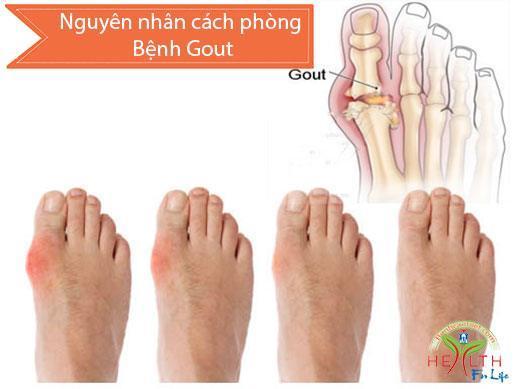 Nguyên nhân cách phòng Bệnh gout