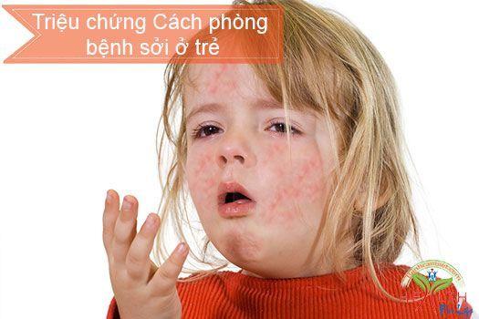 Bệnh sởi ở trẻ em triệu chứng cách phòng bệnh sởi ở trẻ