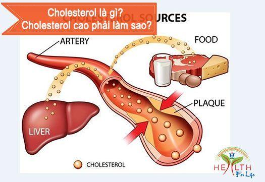 Cholesterol là gì? Cholesterol cao phải làm sao?
