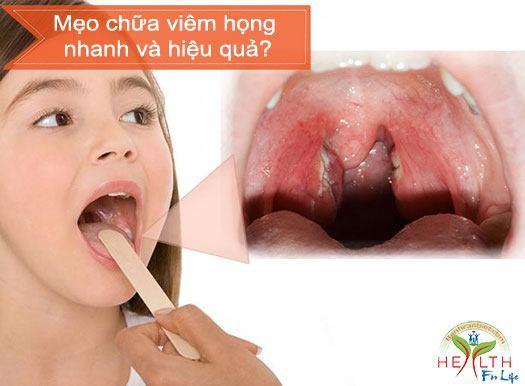 Mẹo chữa viêm họng nhanh và hiệu quả?