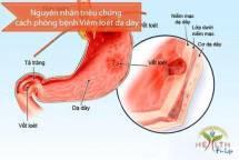 Nguyên nhân triệu chứng cách phòng bệnh Viêm loét dạ dày