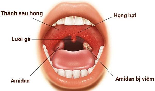 Dấu hiệu triệu chứng khi bị Viêm Họng ?