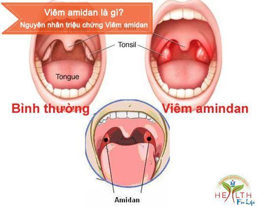 Viêm amidan là gì, Nguyên nhân triệu chứng Viêm amidan