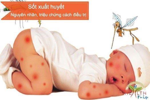 Nguyên nhân, triệu chứng và cách điều trị Sốt xuất huyết